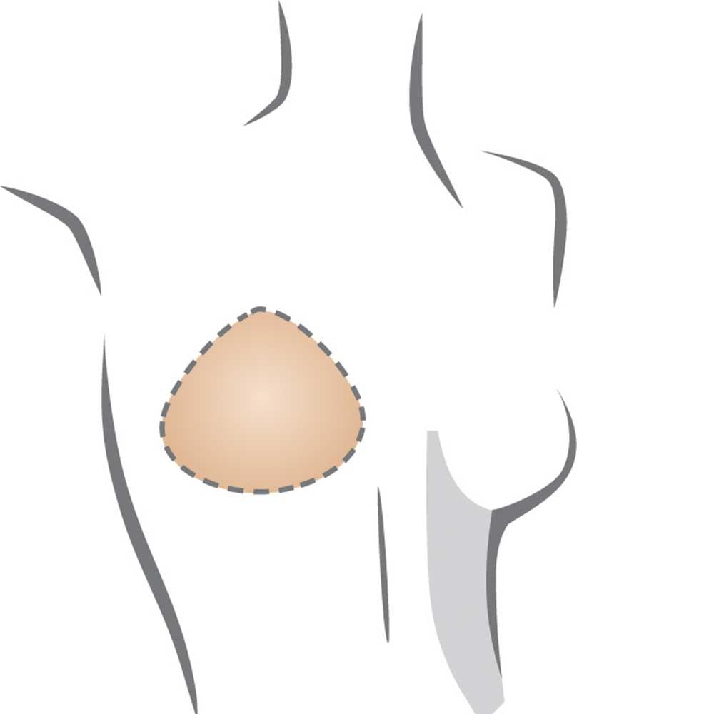 Amoena Balance Delta Teilprothese mit neuer abgerundeter Form, anatomisch geformter Rückseite und sanfteren Übergängen zur Haut