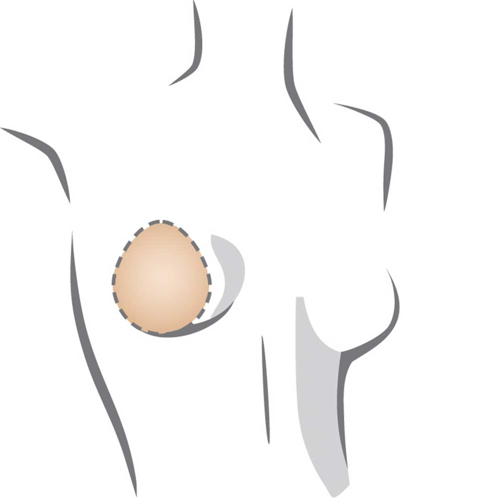 Amoena Balance Natura Thin Oval 227 Teilprothese, mögliche Platzierung hoch